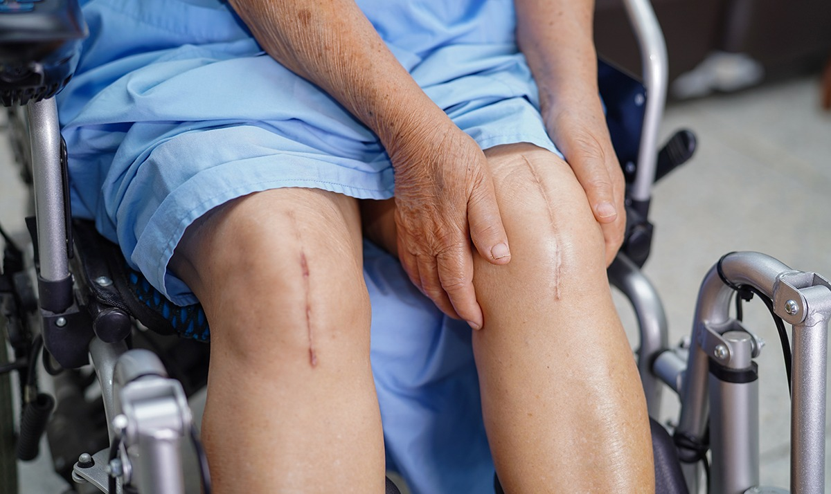 Close-up of a man's knees showing scars from knee surgery as he sits in a wheelchar in blue medical scrubs